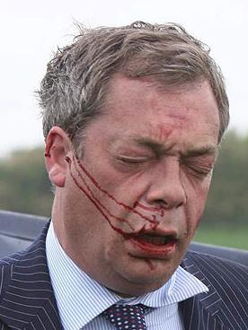 bleeding_farage